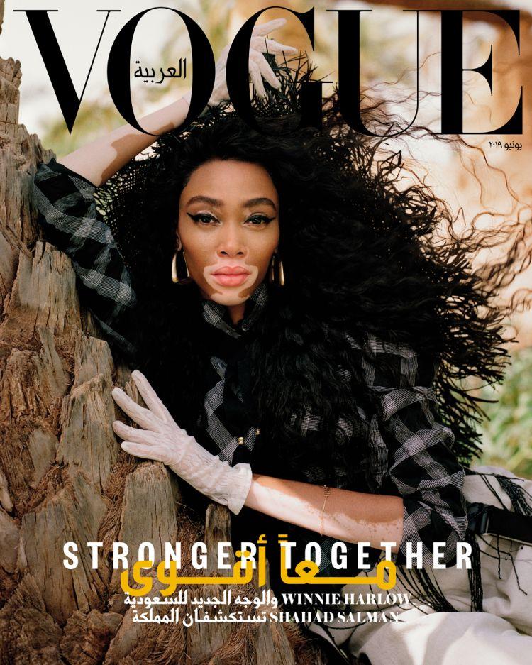 Winnie Harlow - Vogue Arabia 1